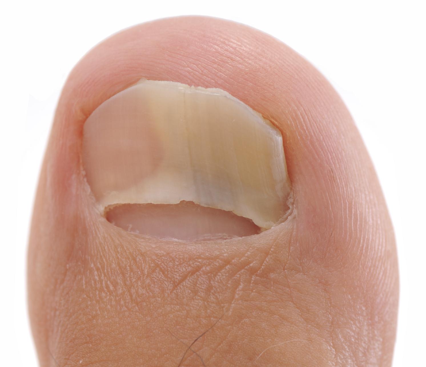 Débarassez-vous définitivement de votre mycose d'ongle !