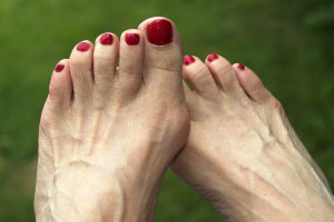 bunions on senior citizen