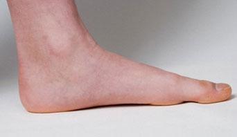 Triad Foot CenterDo I Have Flat Feet? - Triad Foot Center