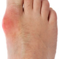 gout inflammation