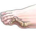 hammer toe illustration