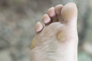 plantar wart removal in Greensboro