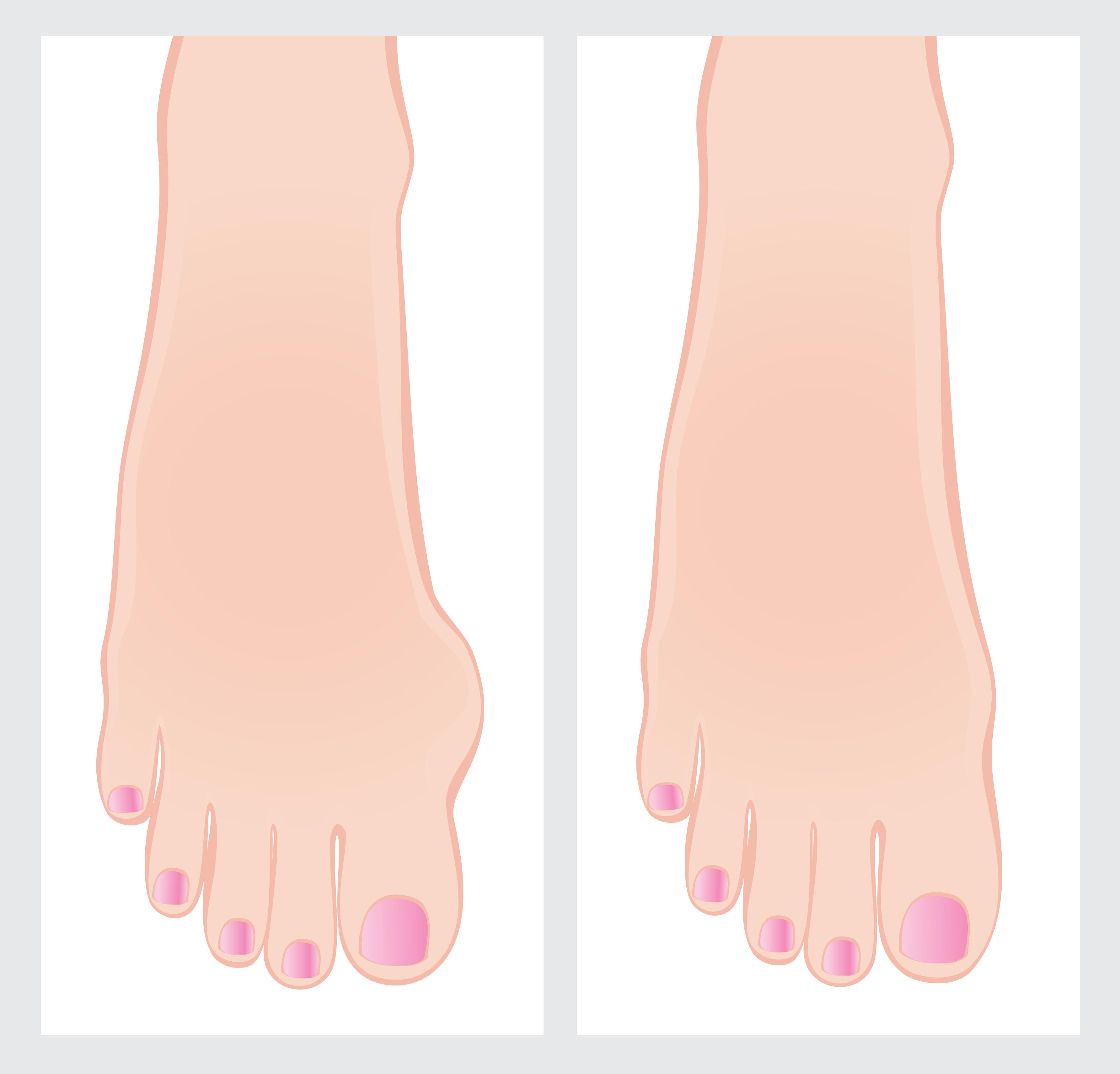 Массаж при варикозе ног можно или нельзя, как делать