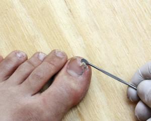 broken toenail treatment