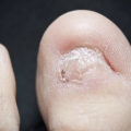 toe with a calloused formation after the toenail was permanently removed due to infected ingrown toenails