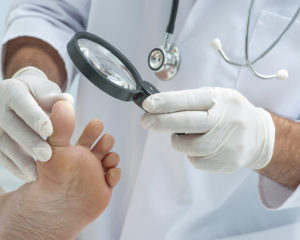 foot cancer and toenails