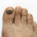 blood under toenail
