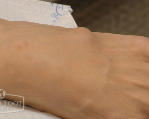 ganglion cyst removal procedure