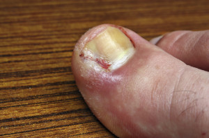 Infection in the nail toe