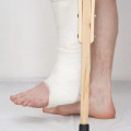 leg in cast on crutches