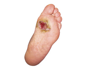 ulcer on bottom of foot