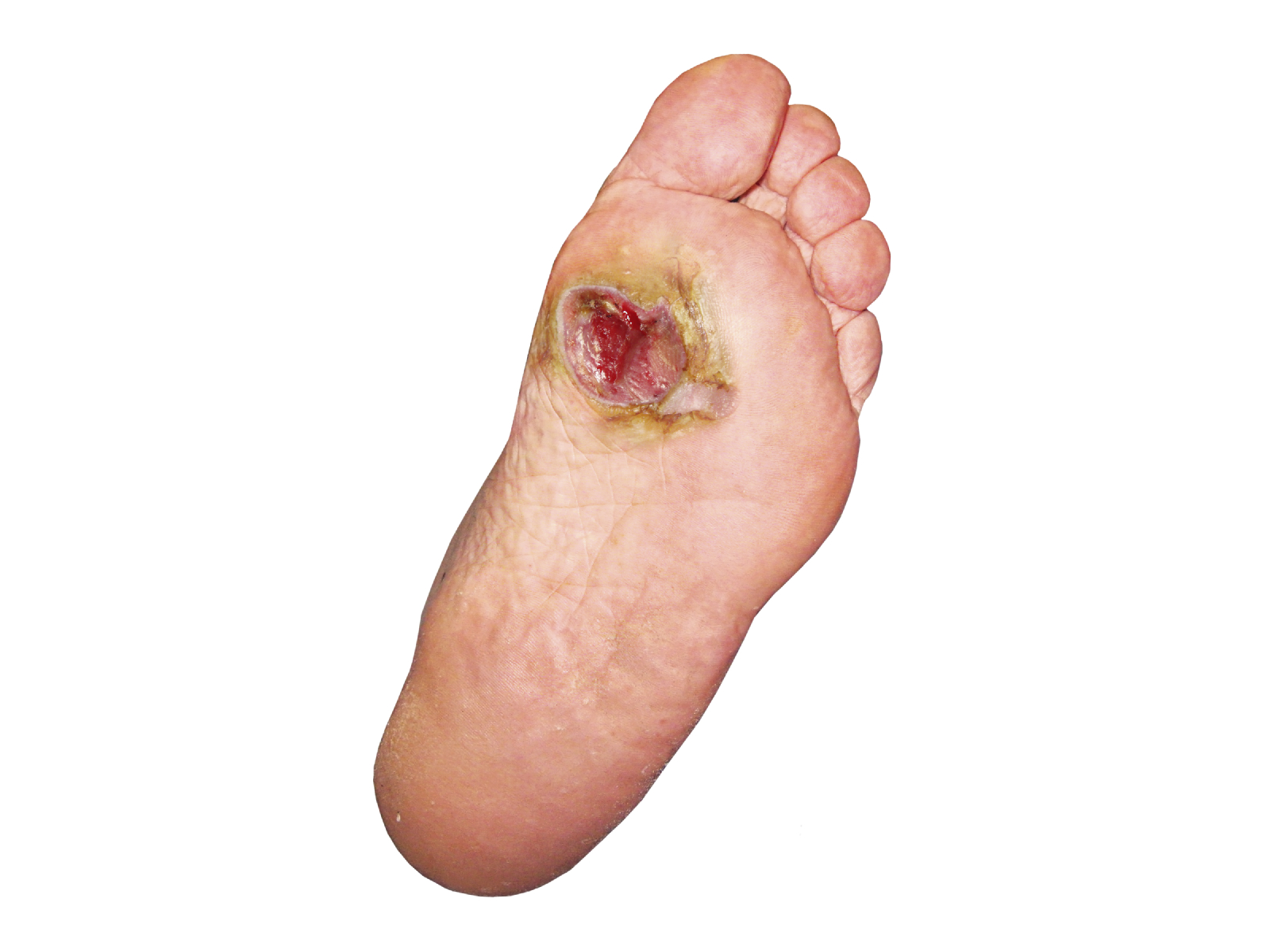 how to heal a deep cut on bottom of foot