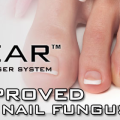 q-clear toneail fungus laser treatment