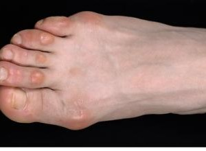 corns and calluses on feet