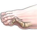 hammer toe illustration