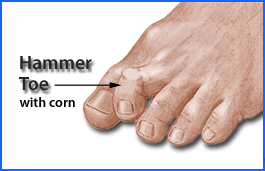 hammer toe with corn