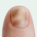 nail fungus discoloration