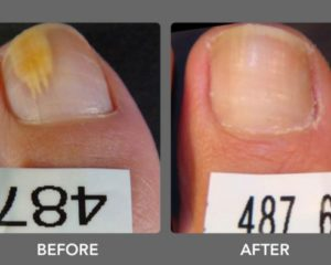 toenail fungal infections