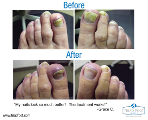 before-after-grace-01