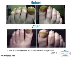 before-after-jack-01