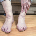 senior foot pain