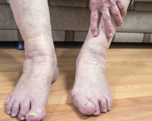 senior foot pain