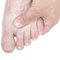 what is hallux limitus