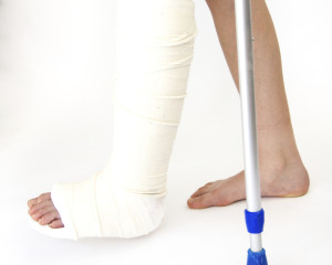 Girl with broken leg