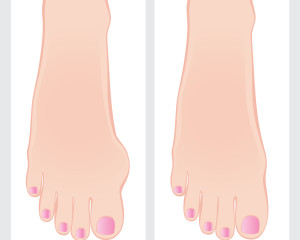bunion before and after