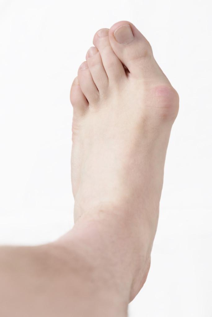 Hallux valgus, bunion in foot.