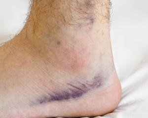 ankle sprain bruising