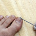 broken toenail treatment