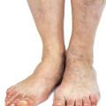 aging feet