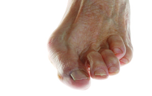 Hammertoe treatment in Greensboro