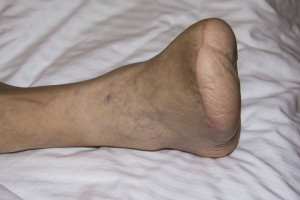 A half foot amputation of a diabetic man