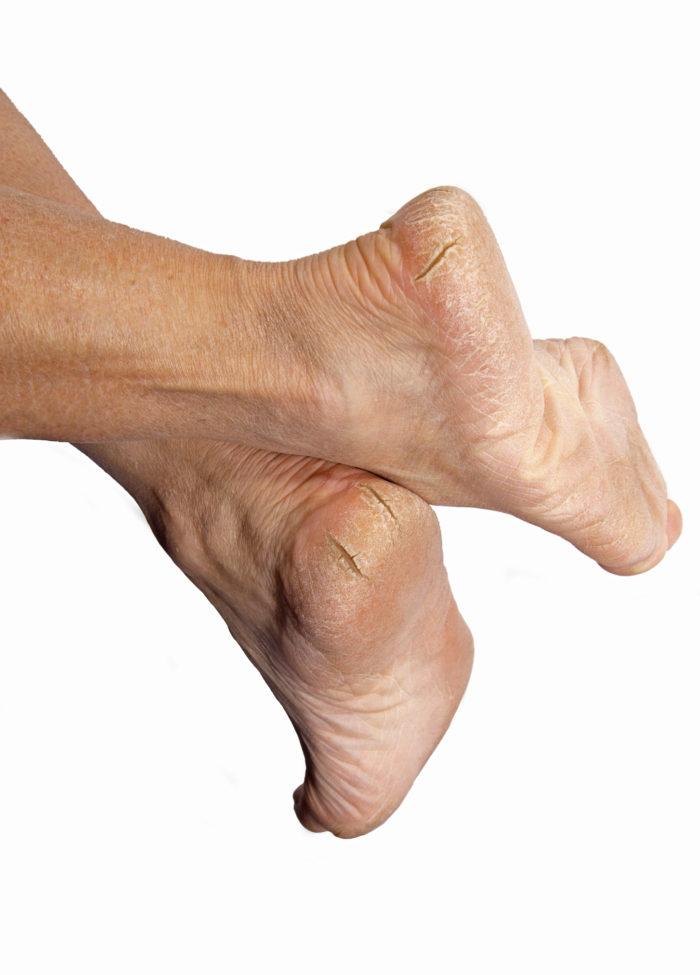 triad foot  u0026 ankle center