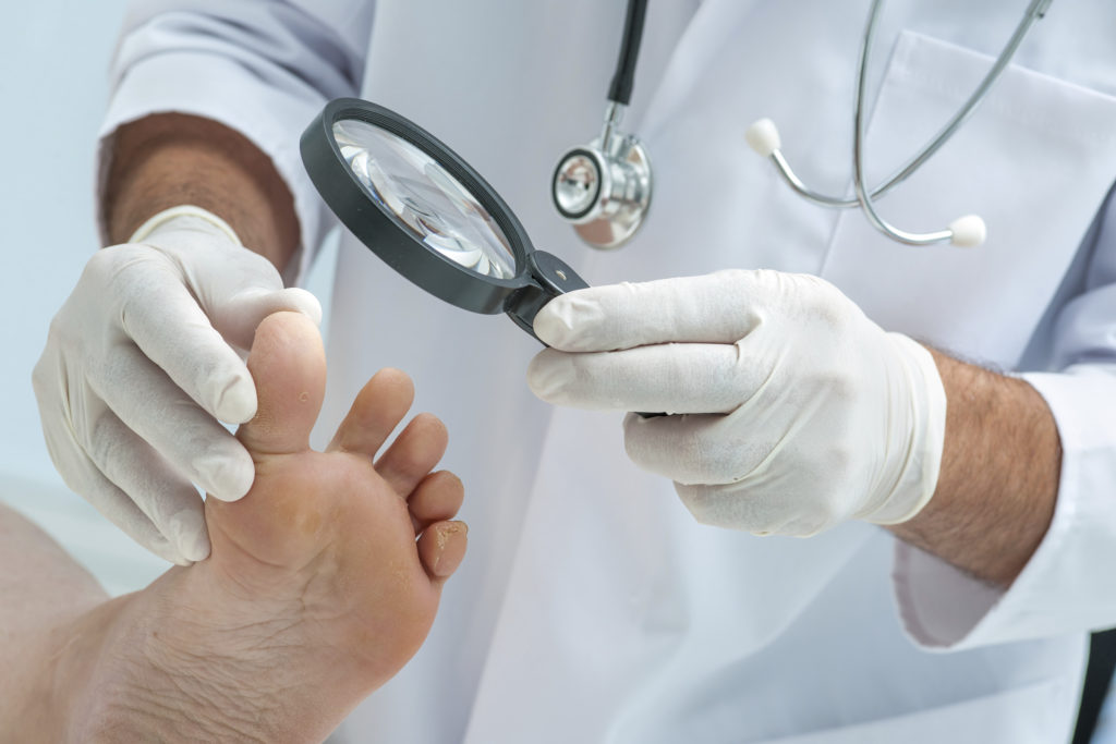 Doctor dermatologist examines the foot on the presence of athlete''s foot