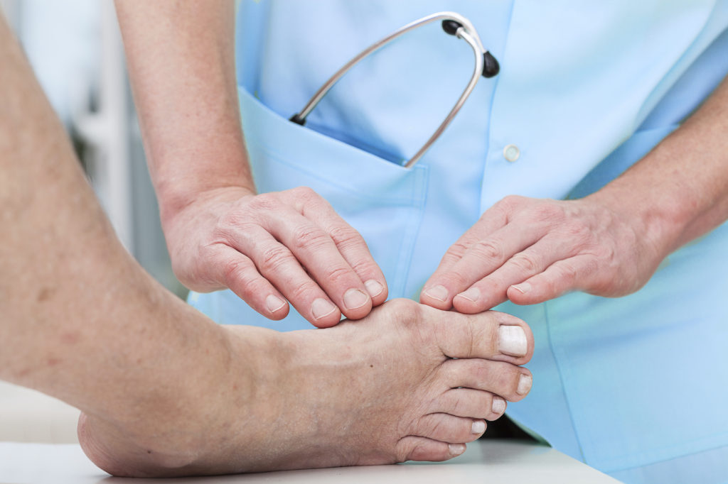 Winter is the perfect time to have bunion surgery