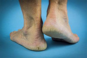 dry feet tips