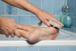 How to remove calluses at home