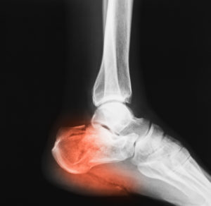 broken heel bone