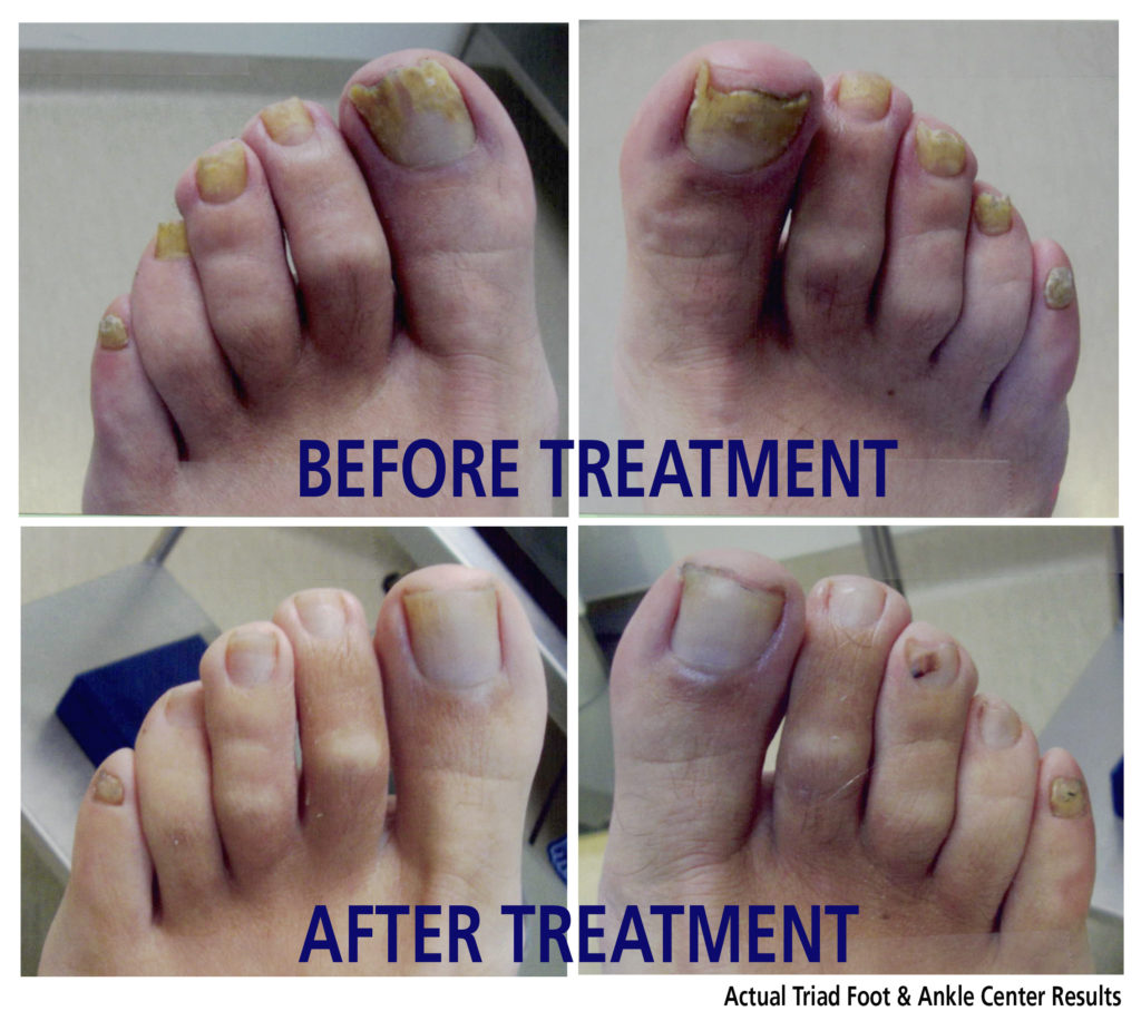 Than to treat a nail fungus of legs or foots