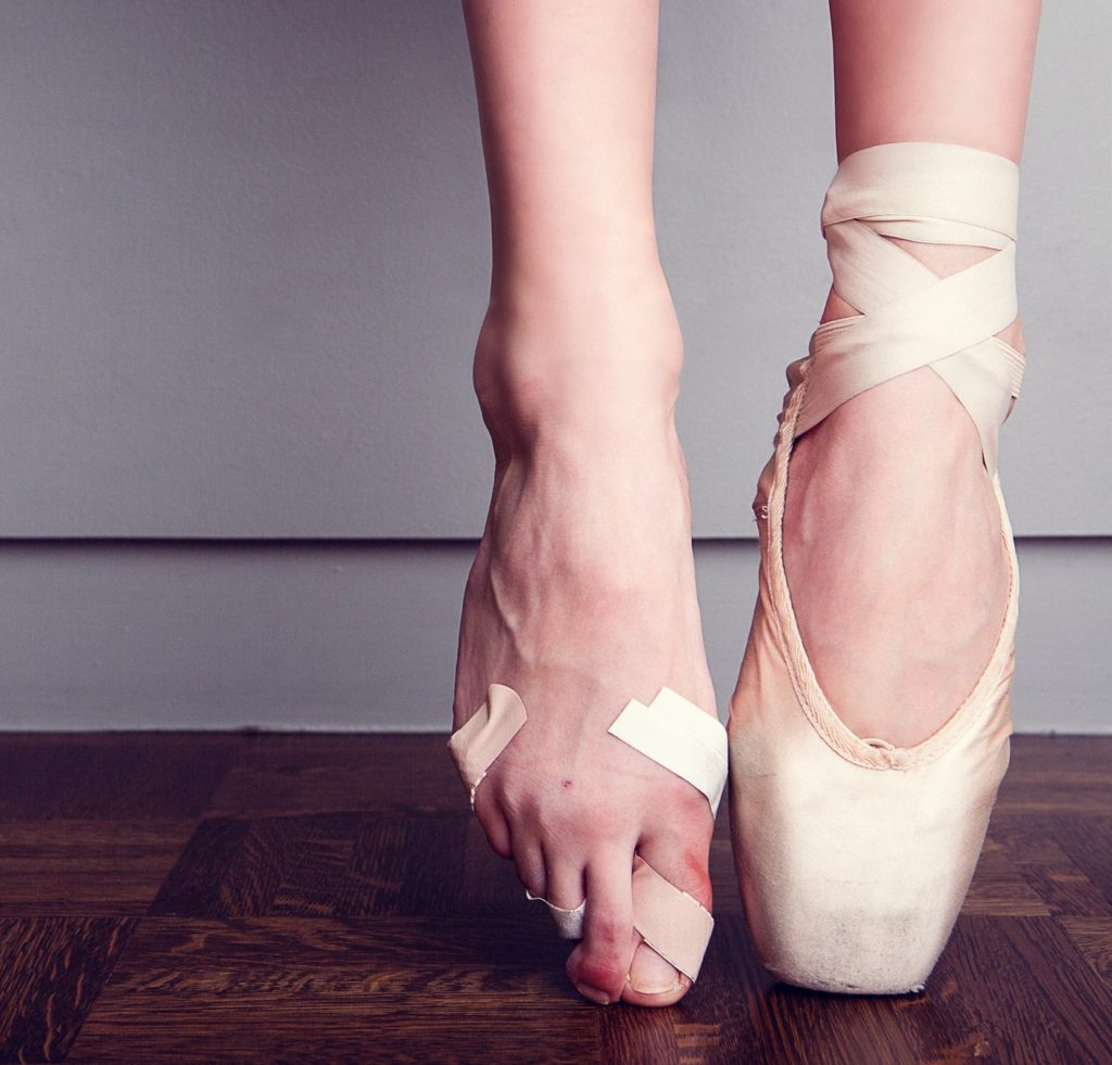 dancers' feet, foot and ankle injuries