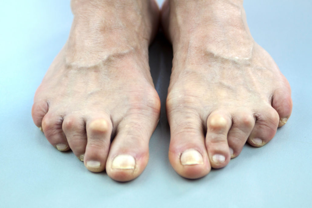 Image result for hammertoe