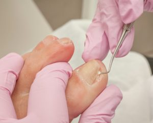 ingrown toenail, ingrown nail