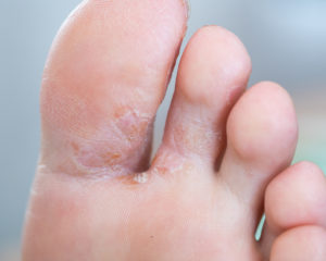 Do I Have Athlete's Foot?